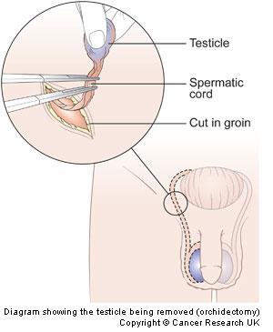 testosterone side effects for women