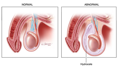 What are Hydroceles and Inguinal Hernias? - Urology Care