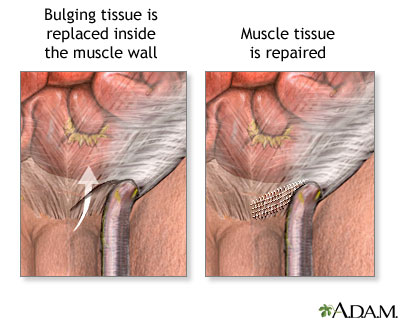 Urology Care Foundation What Are Hydroceles And Inguinal Hernias
