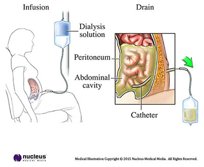 Peritoneal Dialysis of the Abdominal Cavity