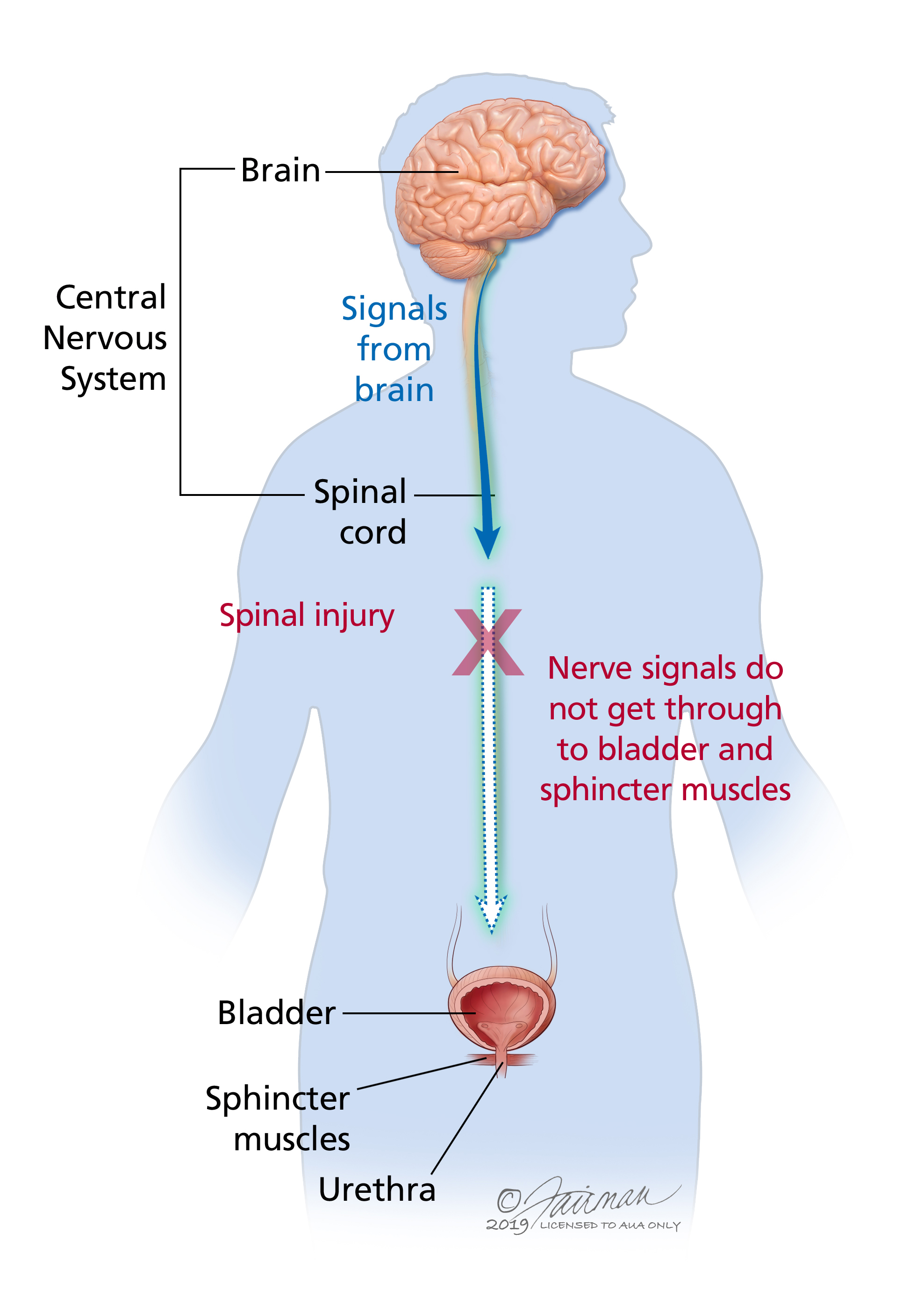 What is Neurogenic Bladder? - Urology Care Foundation
