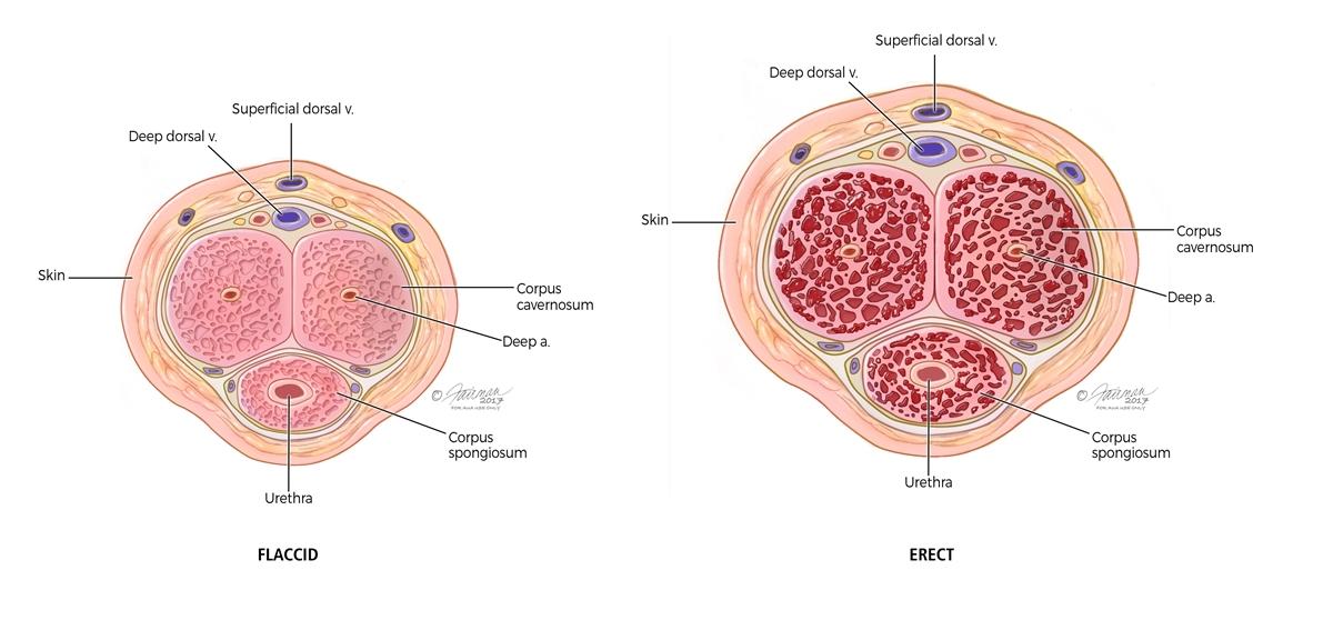 Erectile Dysfunction Ed Symptoms Diagnosis Treatment Urology Care Foundation