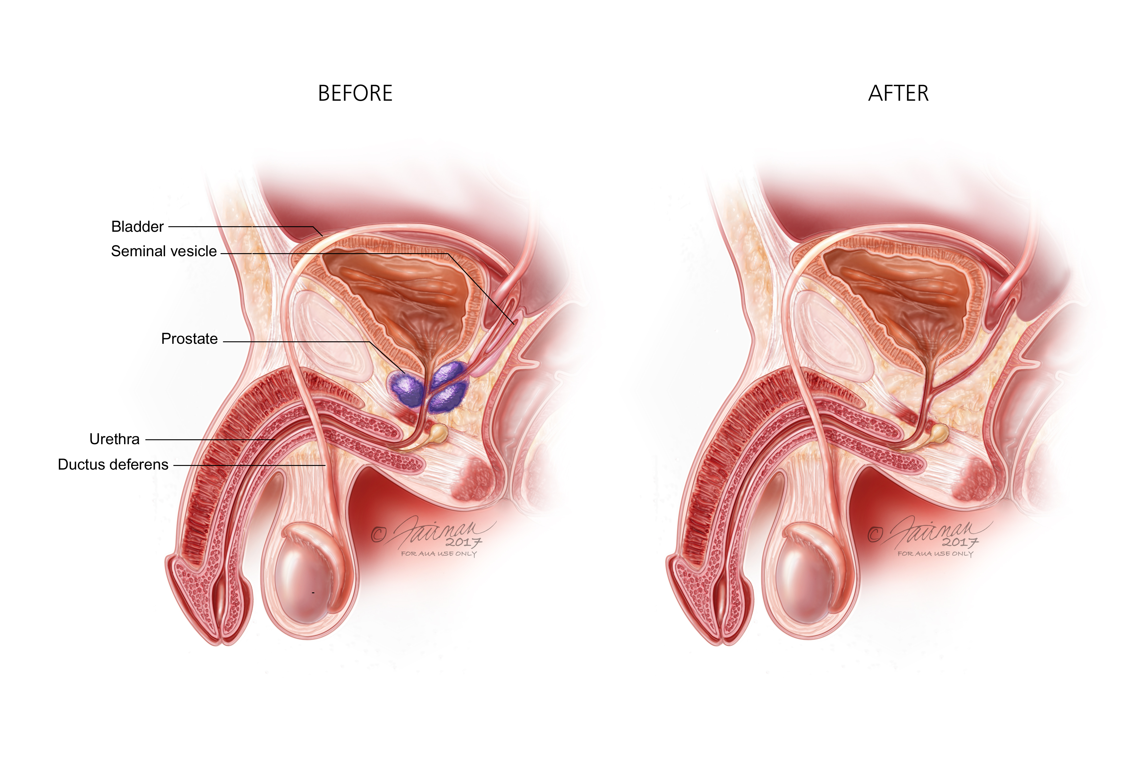 Advanced Prostate Cancer Natural Cures