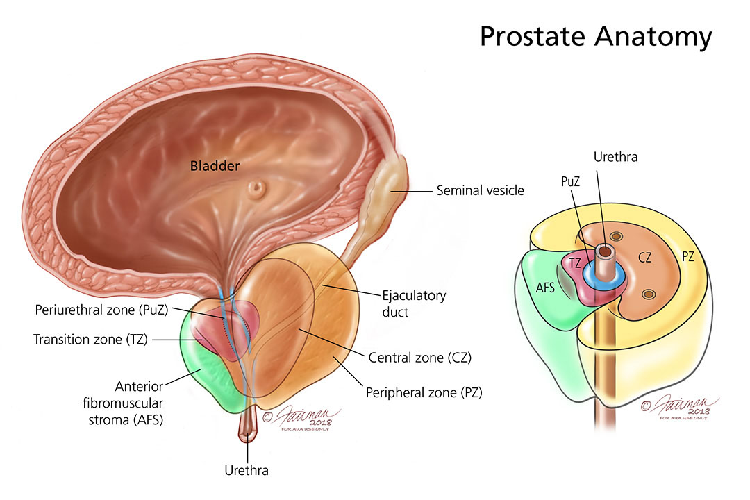 What are Prostatitis and Related Chronic Pelvic Pain
