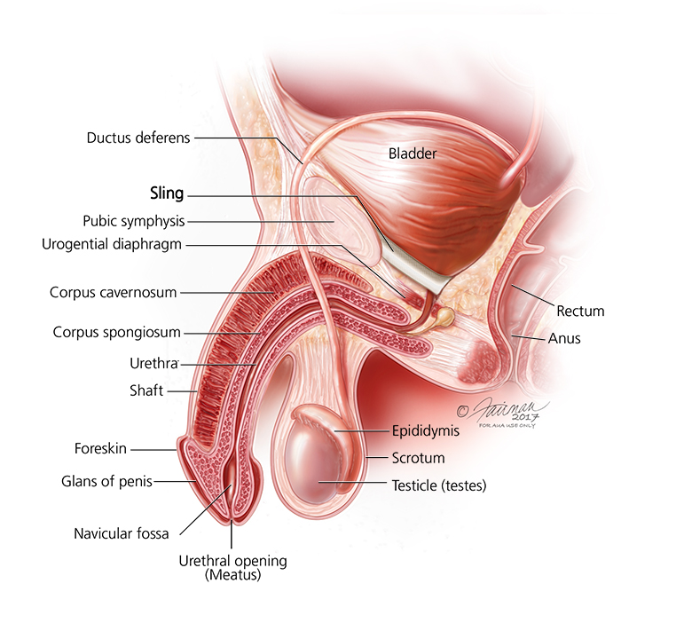 Sling Surgery for Urinary Incontinence