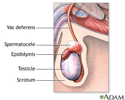 Spermatocele on the Epididymis