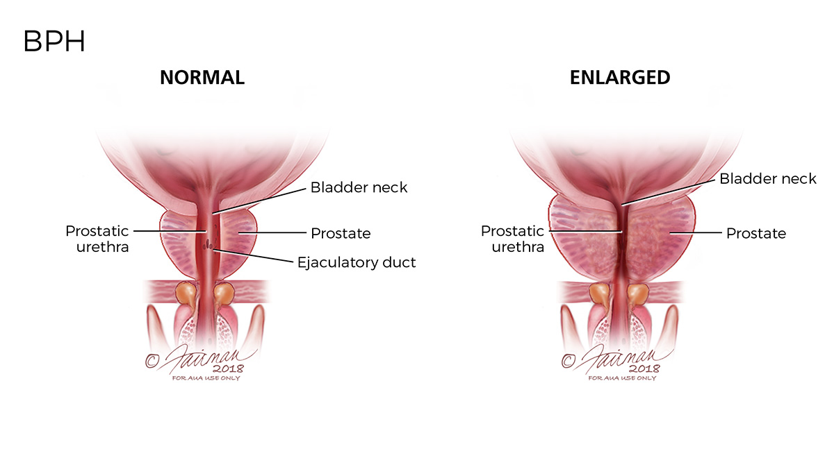 What is Benign Prostatic Hyperplasia (BPH)? - Urology Care Foundation