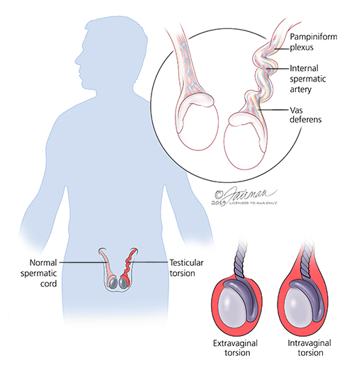 What Is Neonatal Testicular Torsion Urology Care Foundation