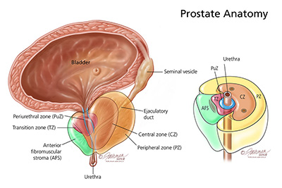 what are prostatitis and related chronic pelvic pain conditions rh urologyhealth org
