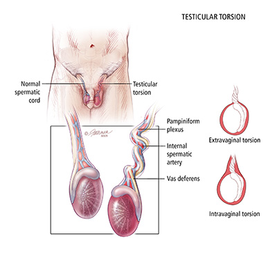 What is Neonatal Testicular Torsion? - Urology Care Foundation