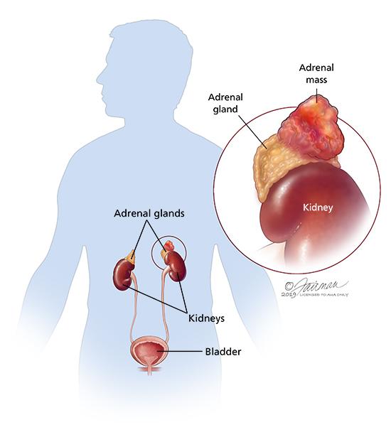 Cancer and hormones. Hormoni in dezbatere: de la cancer la preventie